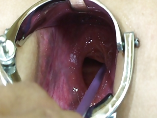 elmer housewife extreme anal speculum tease